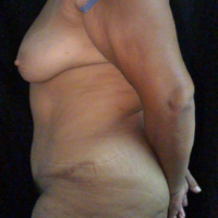 Abdominoplasty case 1 – After