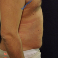 Abdominoplasty case 2 (with hernia treatment) – After