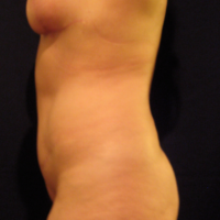 Abdominoplasty case 3b (with breast lift) side view – After