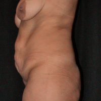 Abdominoplasty case 3b (with breast lift) side view – Before