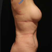 Abdominoplasty case 4 (with breast lifting, with implant) – After