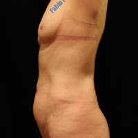 Abdominoplasty case 4 (with breast lifting, with implant) – Before