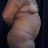 Abdominoplasty case 5 – After
