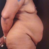 Abdominoplasty case 5 – Before
