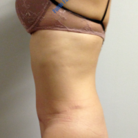 Abdominoplasty case 6 – After