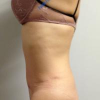 Abdominoplasty case 6 – After
