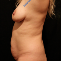 Abdominoplasty case 6 – Before