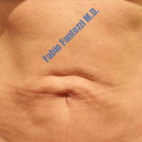 Abdominoplasty case 7 (reconstruction of umbilical region) – Before