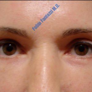 Blepharoplasty case 1 (upper- and lower eyelids) – After