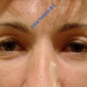 Blepharoplasty case 1 (upper- and lower eyelids) – Before