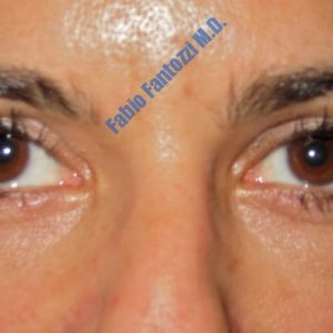 Blepharoplasty case 2 (upper- and lower eyelids) – After