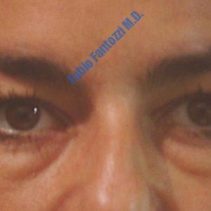 Blepharoplasty case 2 (upper- and lower eyelids) – Before