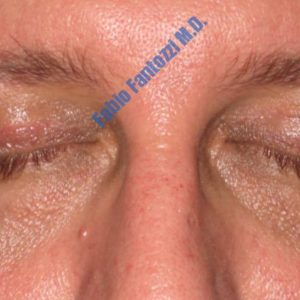 Blepharoplasty case 3 (upper eyelid) – After