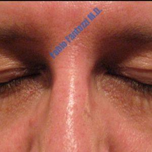 Blepharoplasty case 3 (upper eyelid) – Before