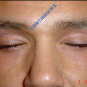 Blepharoplasty case 4 (upper eyelid) – After