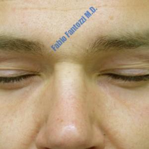 Blepharoplasty case 4 (upper eyelid) – Before