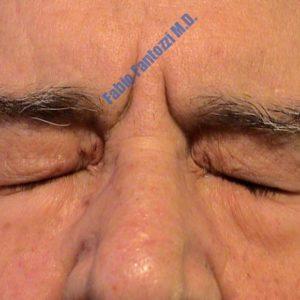 Blepharoplasty case 5 (xanthelasma) – After