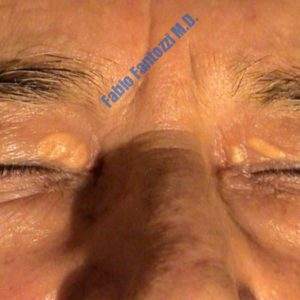 Blepharoplasty case 5 (xanthelasma) – Before