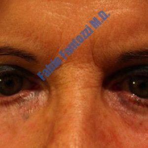 Blepharoplasty case 6 (ectropion) – After