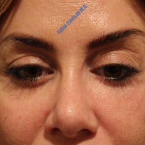 Blepharoplasty case 7 (removal of permanent filler) – After