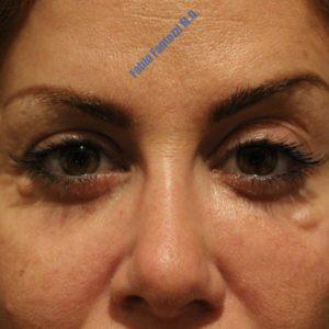 Blepharoplasty case 7 (removal of permanent filler) – Before