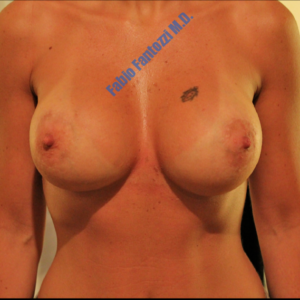 Breast augmentation case 1 – After