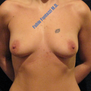 Breast augmentation case 1 – Before