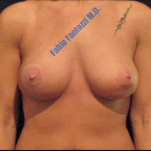 Breast augmentation case 2 – After