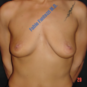 Breast augmentation case 2 – Before