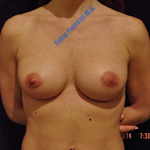 Breast augmentation case 3 – After