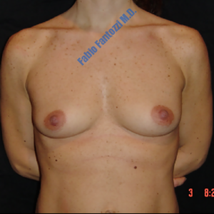 Breast augmentation case 3 – Before