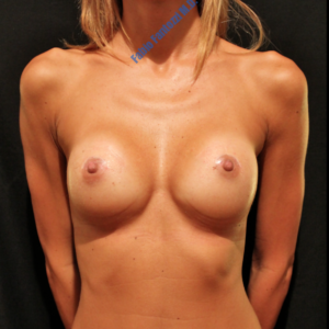 Breast augmentation case 4 – After