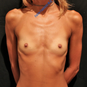 Breast augmentation case 4 – Before