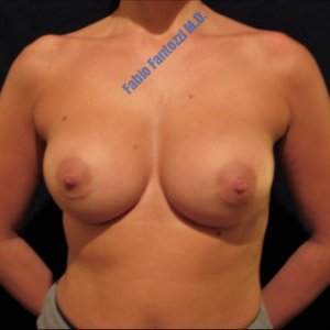 Breast augmentation case 5 – After