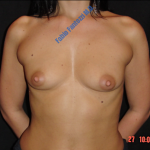Breast augmentation case 5 – Before