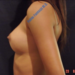 Breast augmentation case 6 – After