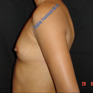 Breast augmentation case 6 – Before