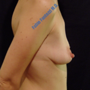 Breast augmentation case 7 – Before