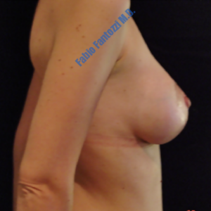 Breast augmentation case 7 -After