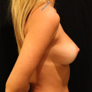 Breast augmentation case 8 – After