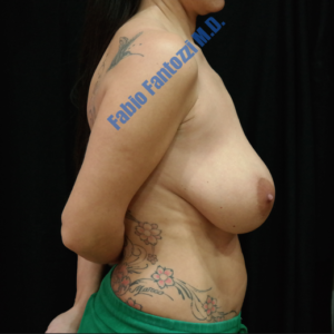 Breast lift case 1 (with implants) – Before