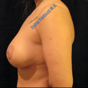 Breast lift case 2 (with implants) – After