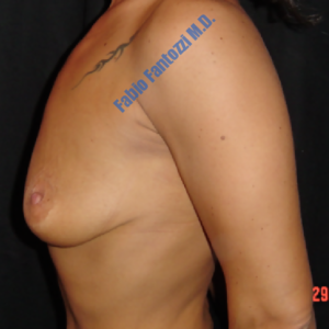 Breast lift case 2 (with implants) – Before
