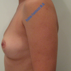 Breast lift case 3 – After