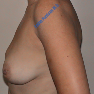 Breast lift case 3 – Before