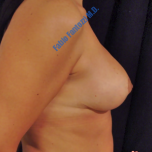 Breast lift case 4 – After
