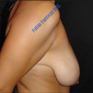 Breast lift case 4 – Before
