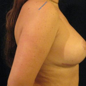 Breast lift case 5 – After