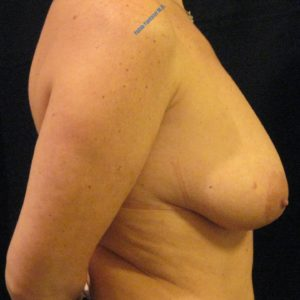 Breast lift case 5 – Before