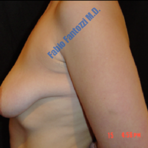 Breast lift case 6 – Before